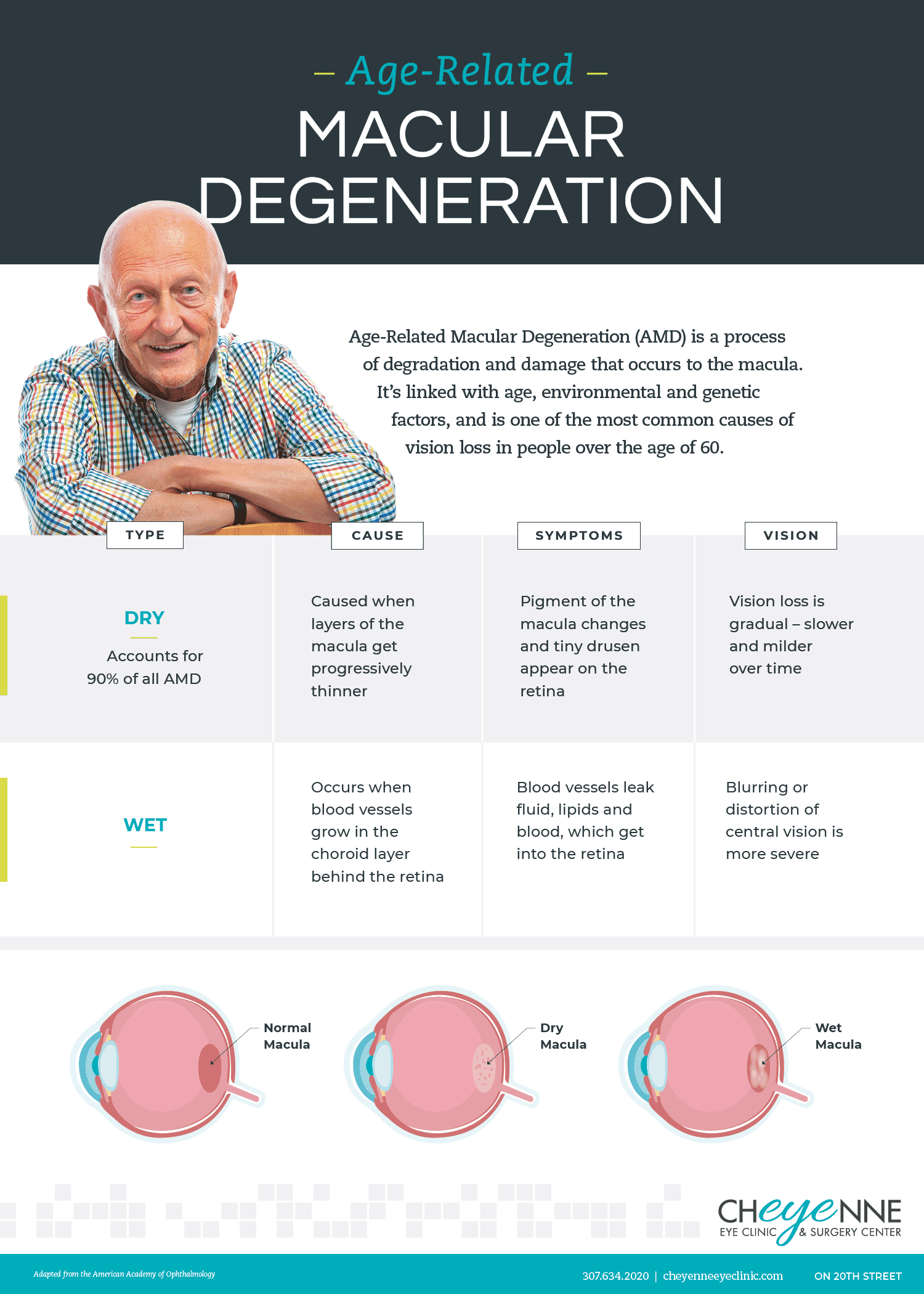 dry vs. wet age related macular degeneration